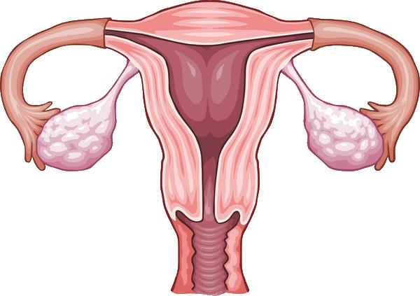 polipul uterin