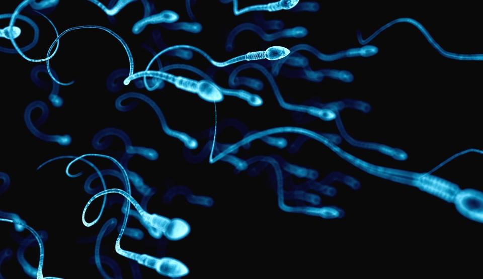 spermograma